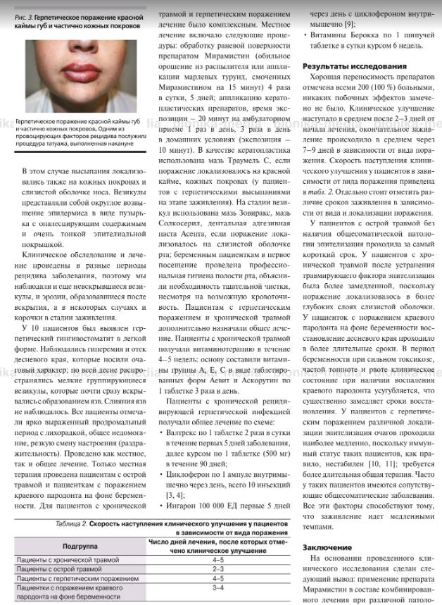 Отрывок из статьи об эффективности мирамистина при лечении заболеваний слизистой рта